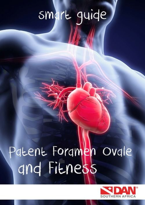 dan-smart-guide-patent-foramen-ovale-and-fitness